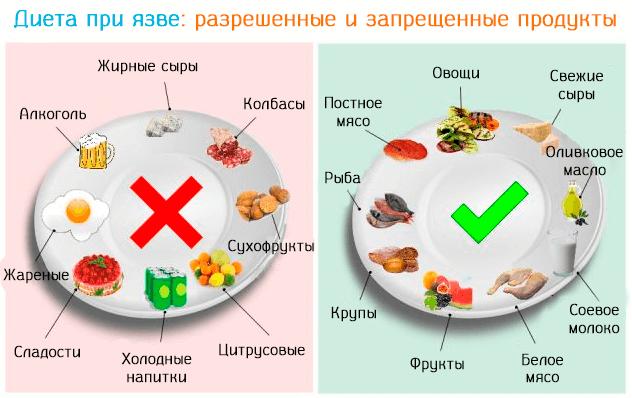 Питание в период ремиссии при язве