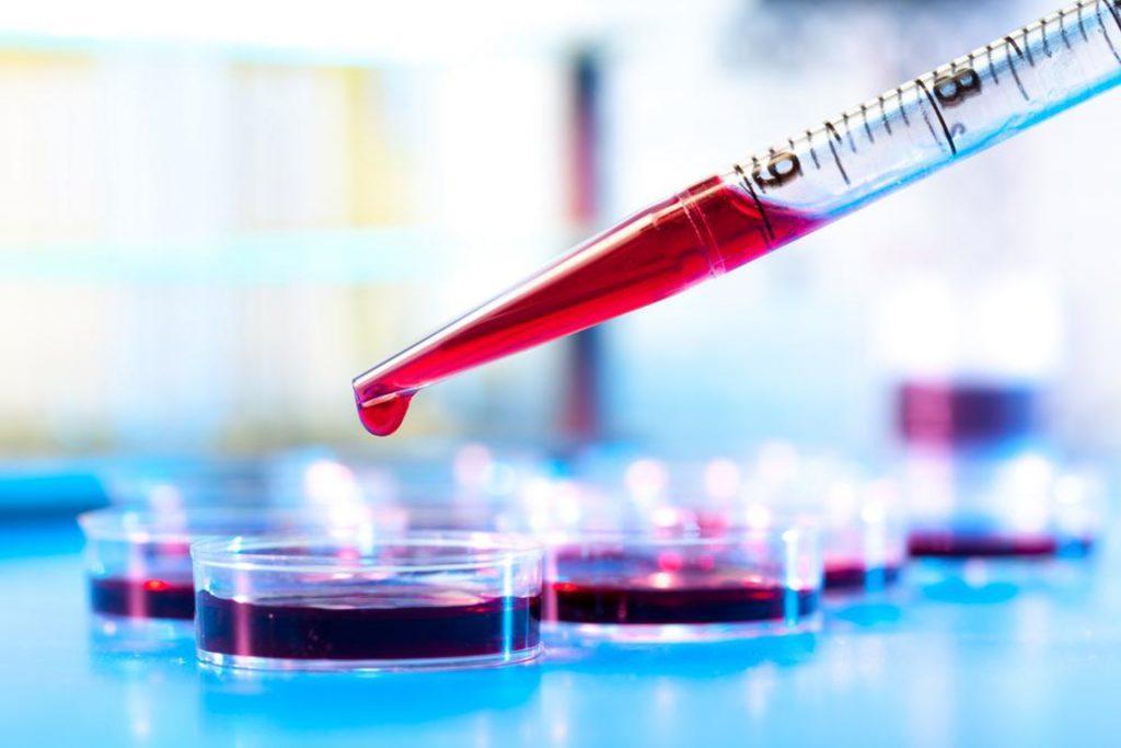 Анализ крови на пищевую непереносимость