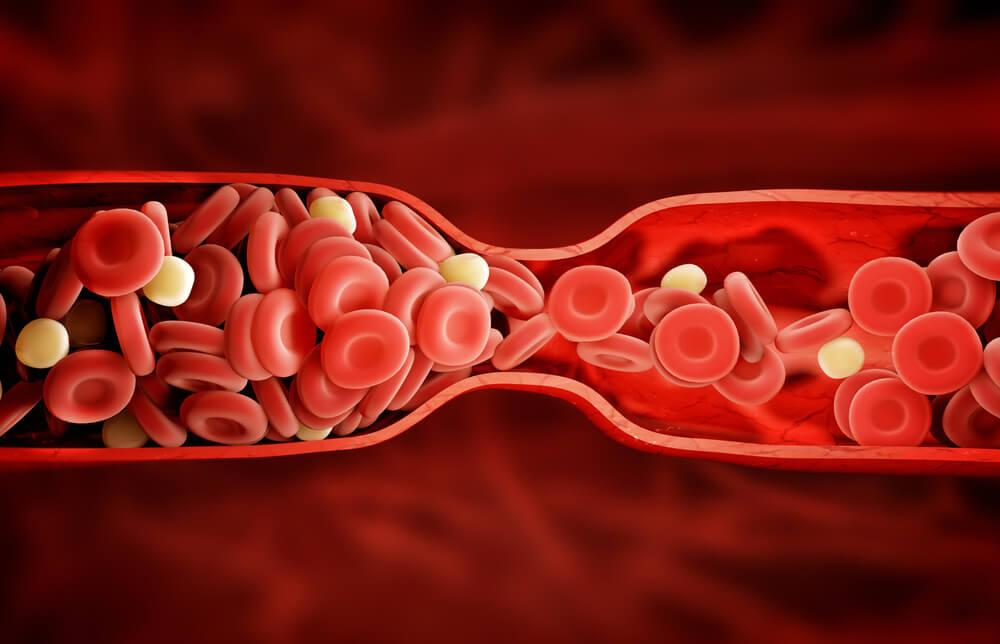 Образование сгустков в артериях
